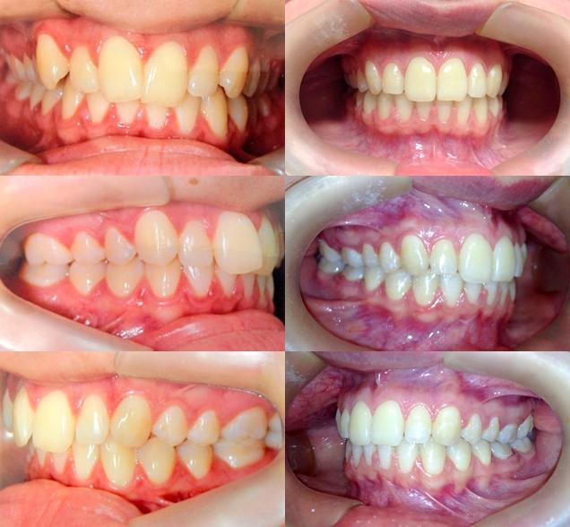 bf95edc1b9b6b Abaixo, temos mais um caso clínico realizado na Clínica Odonthos com  aparelho ortodoôntico fixo autoligado ou autoligante. www.odonthos.com.br