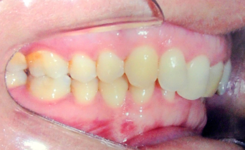 9a1e83779d1ce Abaixo, caso clínico ortodôntico tratado com aparelho dentário fixo  autoligado ou autoligante.
